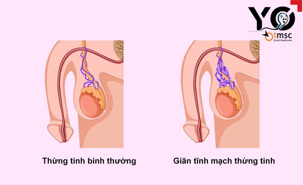 Giãn tĩnh mạch thừng tinh hay còn gọi là giãn tĩnh mạch tinh hoàn là bệnh lý khá phổ biến ở nam giới