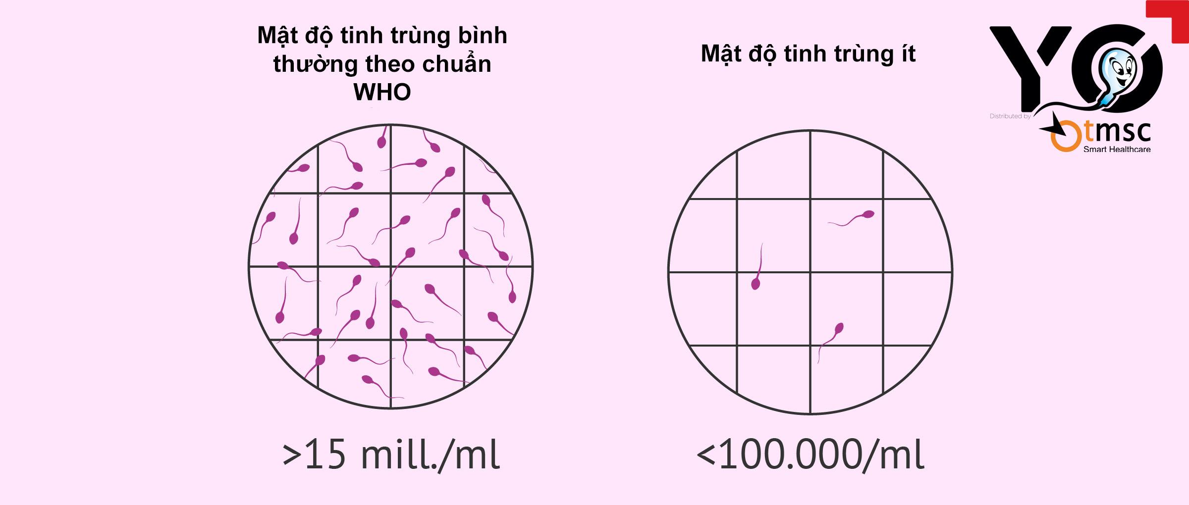 Số lượng tinh trùng di động sẽ được thể hiện qua kết quả xét nghiệm tinh trùng