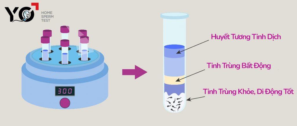Sàng lọc tinh trùng để tiến hành bơm tinh trùng IUI