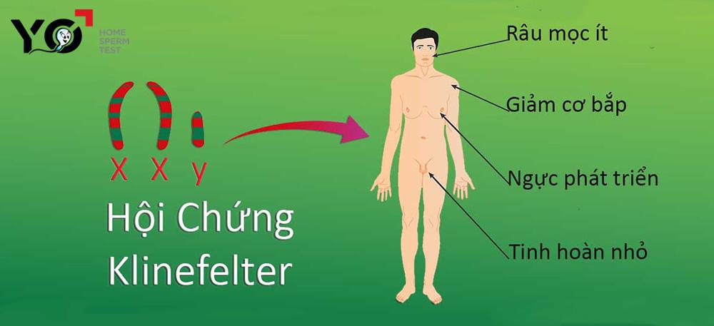 Hội chứng Klinefelter gây vô sinh ở nam giới